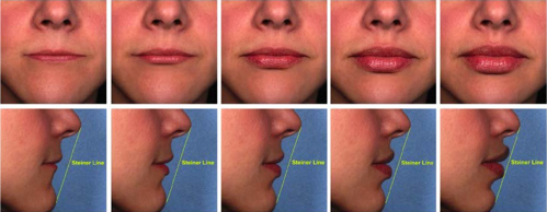 Progressive addition of Juvederm to the lips