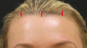 Endoscopic brow lift incisions